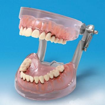 Periodontal Disease Model PE-PER004