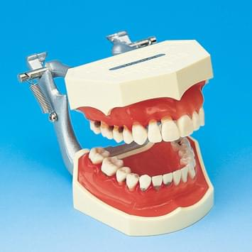 Periodontal Disease  Model PE-PER007
