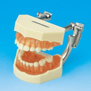Study Model with Removable Primary Teeth (Transparent pink gingiva) PE-ANA003
