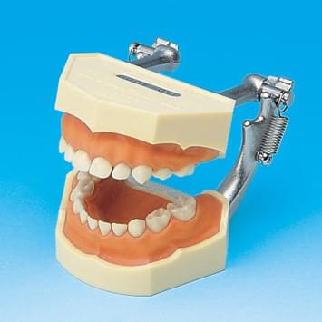 Study Model with Removable Primary Teeth (Pink silicone gingiva) PE-ANA004