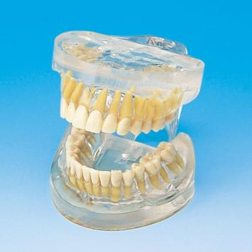 Transparent Jaw Model with Teeth PE-ANA005
