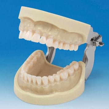 Prosthetic Restoration Jaw Model (32 teeth) - clear gingiva
