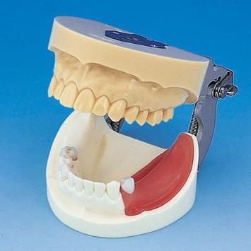 Implant Practice Jaw Model