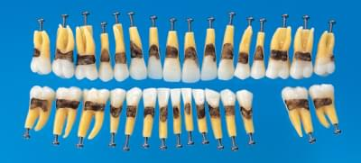 Anatomical Simple Root Tooth Model B1A-901C (31 teeth set)