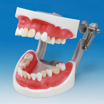 Tooth Extraction Model SUG2004-UL-SP-DM-28