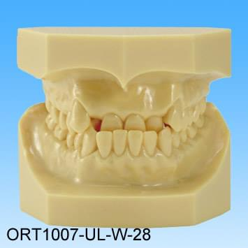 Resin Malocclusion Model (class I reversed occlusion)