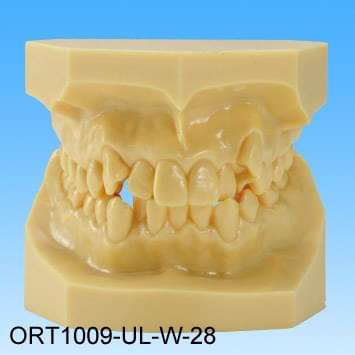 Resin Malocclusion Model (class I crowding)
