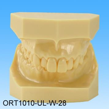 Resin Malocclusion Model (class II division 1 deep overbite)