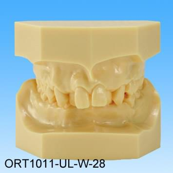 Resin Malocclusion Model (class II division 1 crowding)