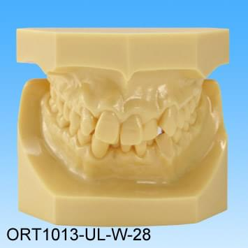 Resin Malocclusion Model (class II division 2 crowding)