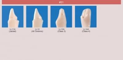 Abutment, Cavity Preparation Tooth Model (#31)