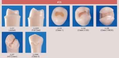 Abutment, Cavity Preparation Tooth Model (#35)