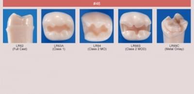 Abutment, Cavity Preparation Tooth Model (#46)