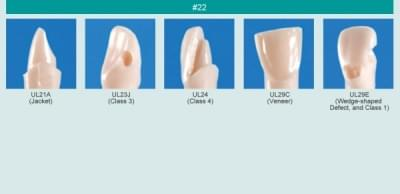 Abutment, Cavity Preparation Tooth Model (#22)