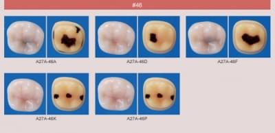 Caries Tooth Model (#46)