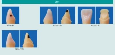 Caries Tooth Model (#11)