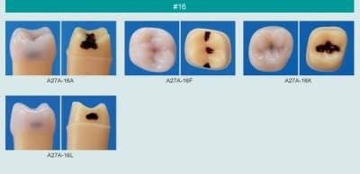 Caries Tooth Model (#16)