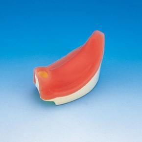 Implant Socket for IMP1001-UL