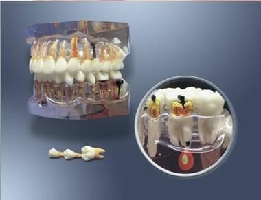 MDO-64 - Enlarged Model for Hygiene and Caries' Evolution