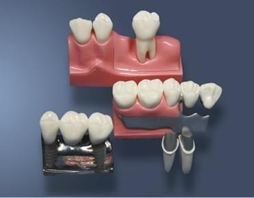 MDO-59 - Reconstruction on removable partial denture and implants