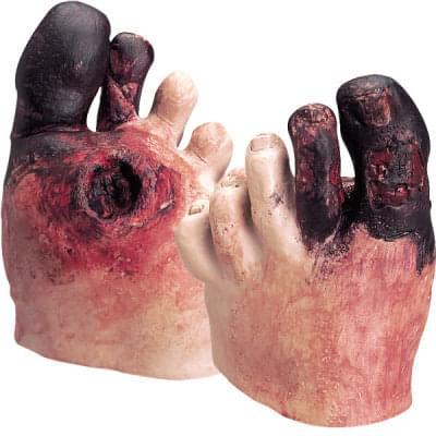 WA21216 - Unhealthy Foot Care Kit