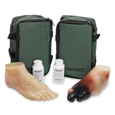 SB43093 - Diabetic Foot Model Set