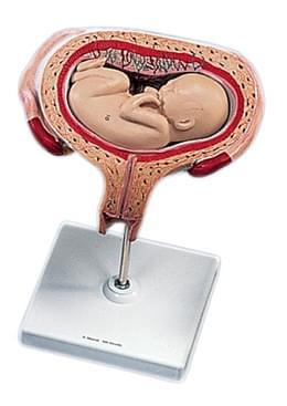 L10/6 - 5th Month Fetus - Transverse Lie