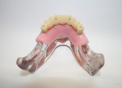 MDO-56 - All on 4 implant procedure
