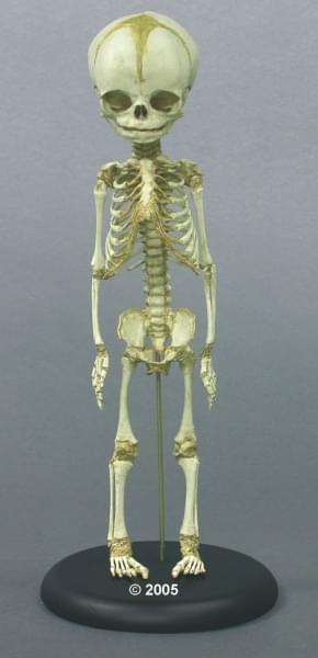 SC-181-A - Fetus Skeleton, 30. week