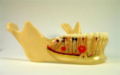 MDO-04 - Implants
