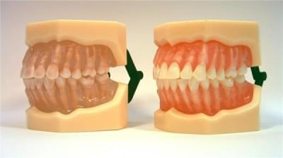MDO-07 - Removable Anatomic Teeth
