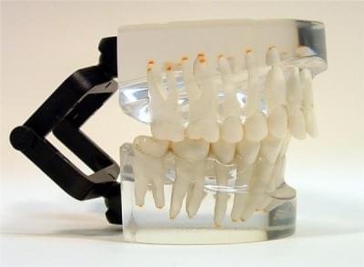MDO-13 - Orthodontics - class II - div. 1