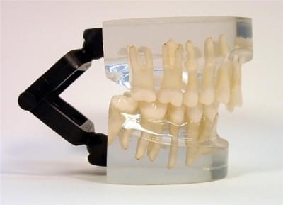 MDO-14 - Orthodontics - class II - div. 2