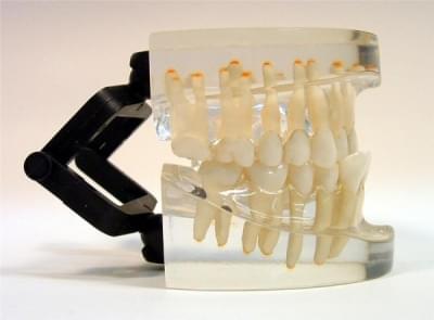 MDO-17 - Orthodontics - class III
