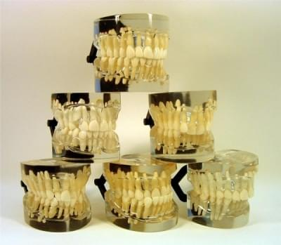 MDO-18 - Orthodontic models