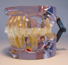 MDO-43 - Implants and Pathologies