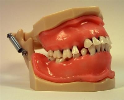 MDO-29 - Gum Suture