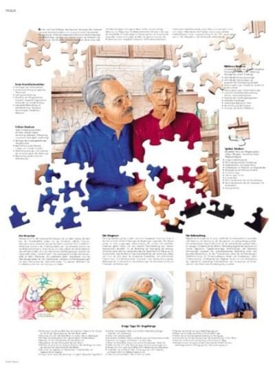 VR1628L - Alzheimer's disease