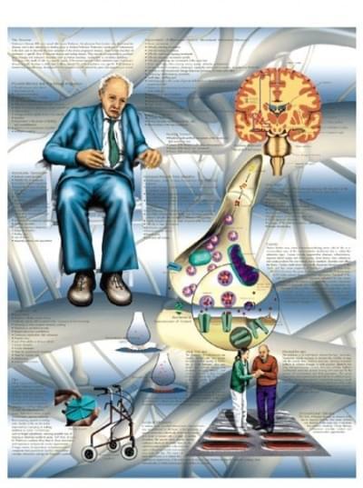 VR1629L - Parkinson's Disease