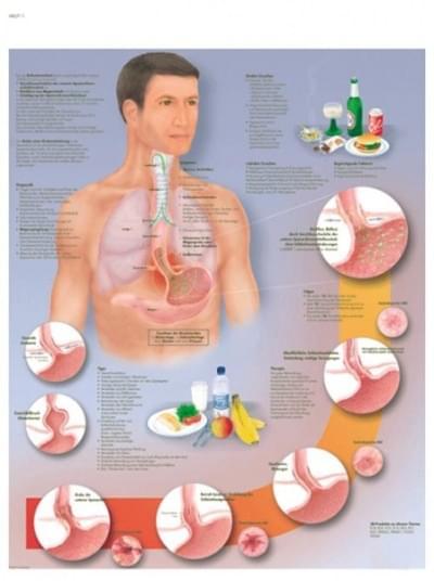 VR1711L - Gastroesophageal reflux disease