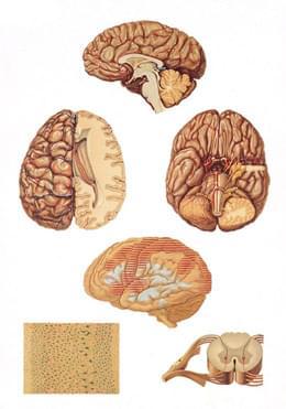 V2034U - Human Central Nervous System