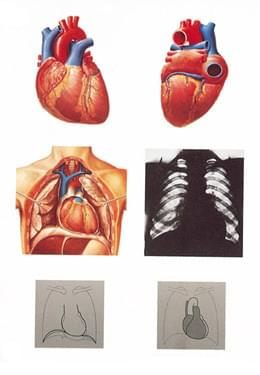 V2053U - The Heart - Anatomy