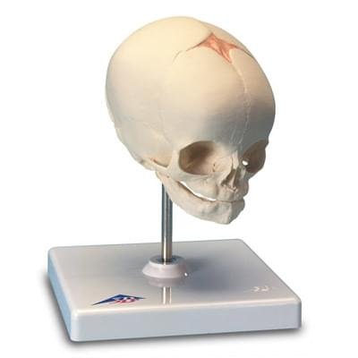 A26 - Foetal Skull Model, natural cast, 30th week of pregnancy, on stand