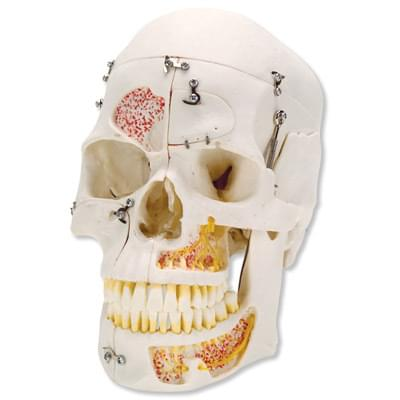A27 - Deluxe Human Demonstration Dental Skull Model, 10 part