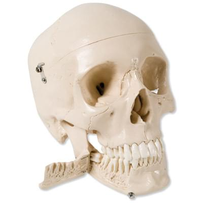 W10532 - Skull Model with Teeth for Extraction, 4 part