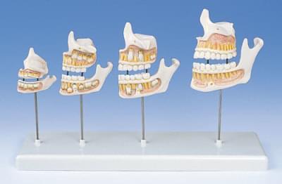 D20 - Dentition Development