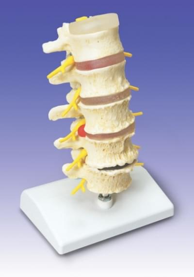 A795 - Stages of disc prolapse and vertebral degeneration