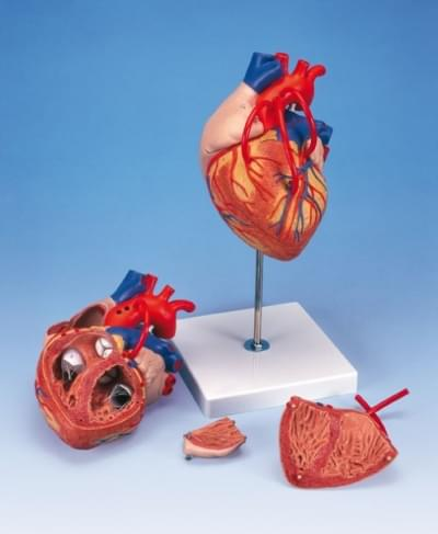 G06 - Heart model with Bypass