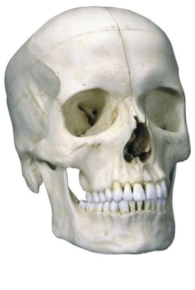 A281 - System basic skull