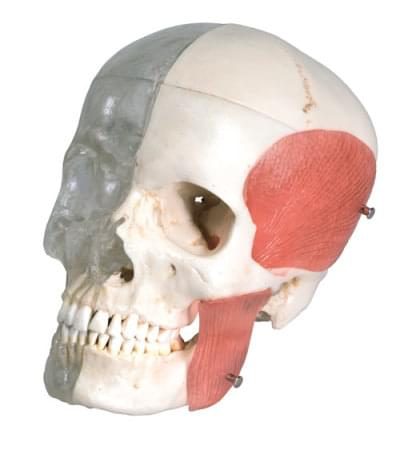 A282 - System combined skull